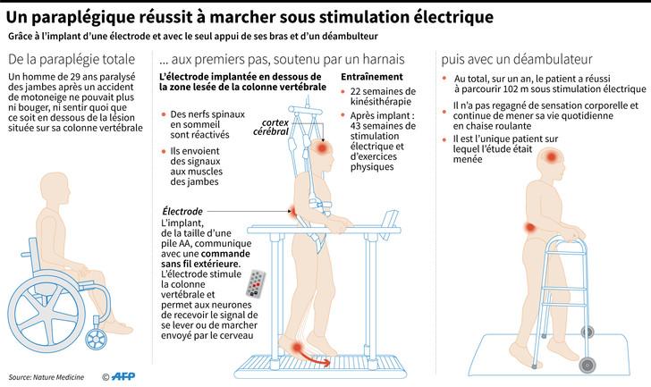 paraplegique-reussit-marcherstimulation-electrique_0_728_433